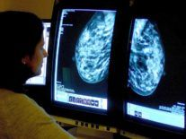 Magnetic molecule tech lets us see breast tumours 'breathe' in real time