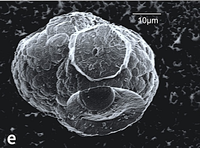 Microscopic image of the spheroid microhabitat dubbed the 'death star'.