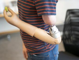 Mind-controlled prosthetic arm can now 'feel' objects