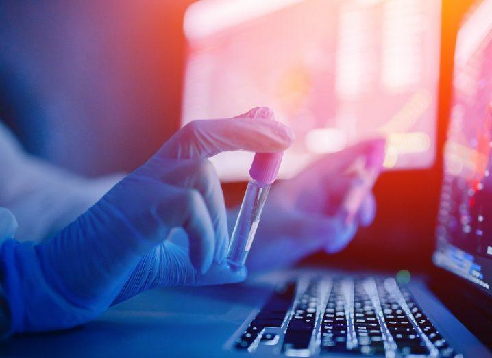 Hand wearing a surgical glove holding a vial of blood beside a laptop.