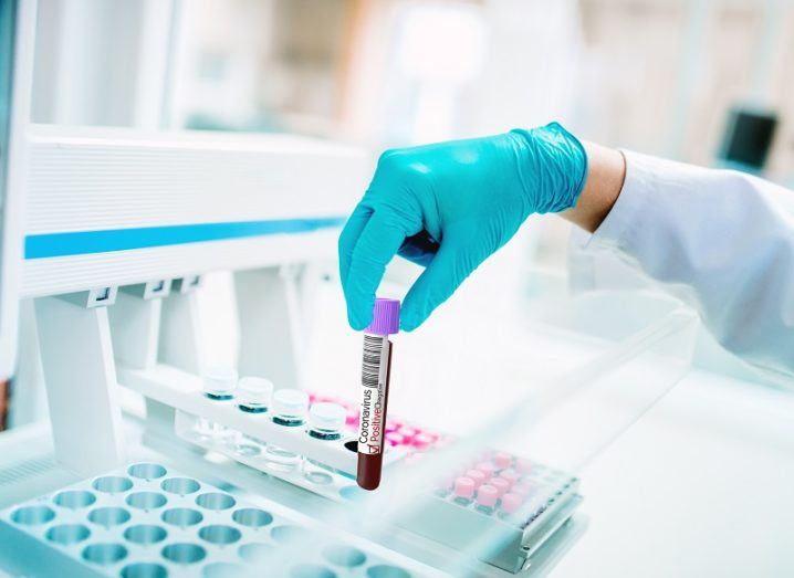 Researcher wearing a blue surgical glove holding a vial of blood in a lab.