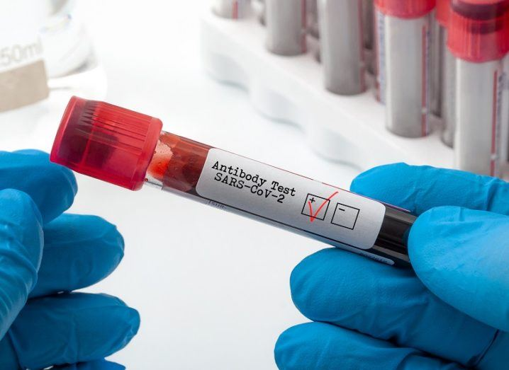Novel coronavirus clinical antibody testing and Covid-19 diagnostic concept with doctor holding blood plasma sample used to test for SARS-CoV-2 antigen with a red check in the positive box.
