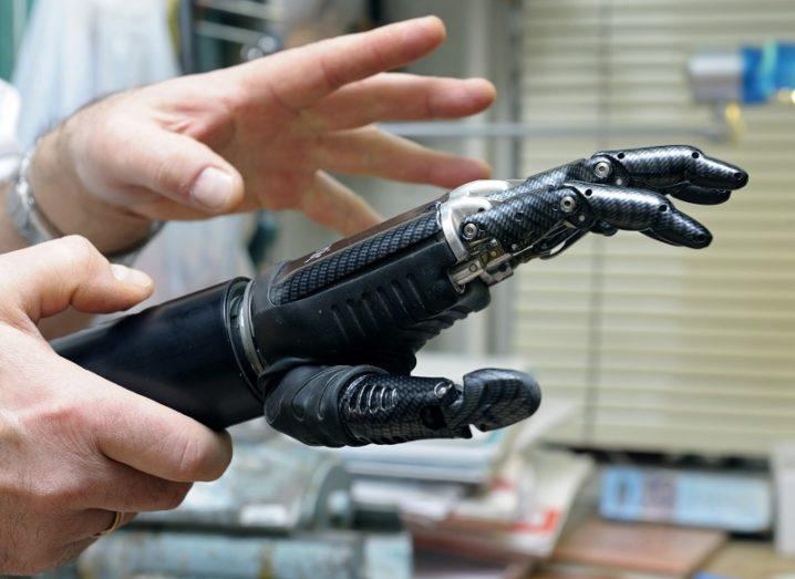 Pair of hands holding a black prosthetic hand in a lab.