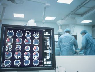 AI that diagnoses stroke among winners of European health-tech awards