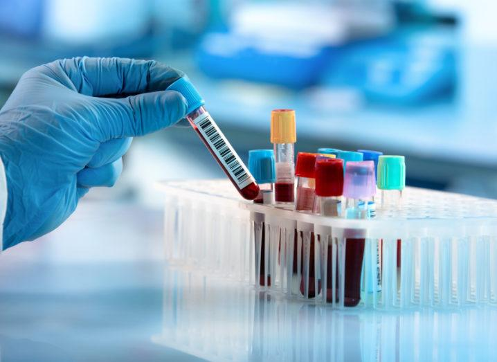 A gloved hand holds a vial of blood beside a small rack of other vials of blood samples in a lab.