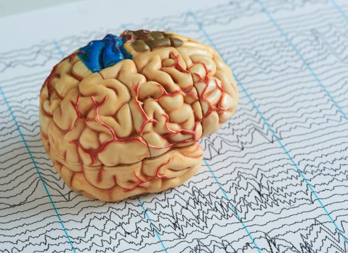 A 3D model of a brain on top of a piece of paper full of EEG waves.