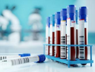 UCD research may predict severity of Covid-19 from blood tests