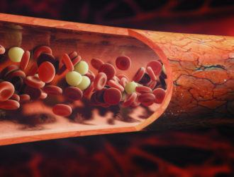 RCSI research finds link between 'long Covid' and blood clotting