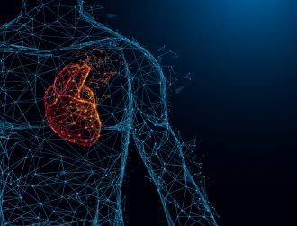 Irish-German OneProjects gets $17m pump for heart imaging tech